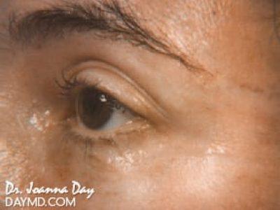 laser-skin-resurfacing01-after.beforeafter.daymd