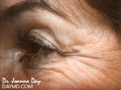laser-skin-resurfacing01-before.beforeafter.daymd